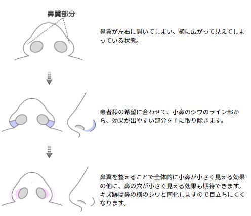 shingekinonoa